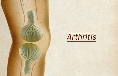 Authentic Ayurvedic Remedies for Osteoarthritis!