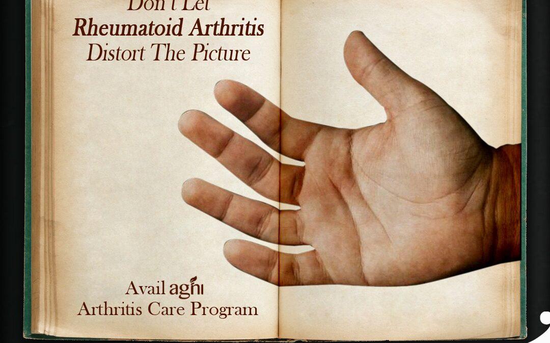 Ayurvedic Treatments for Rheumatoid Arthritis!!!
